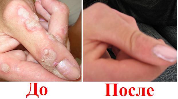 Бородавки на руке - до и после