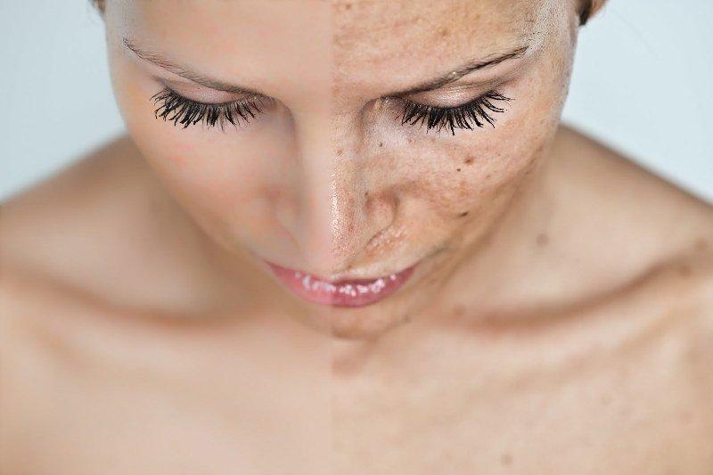 Пигментация на теле и лице