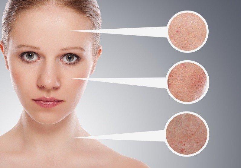 Подбираем маски для эффективного решения проблем капризной кожи