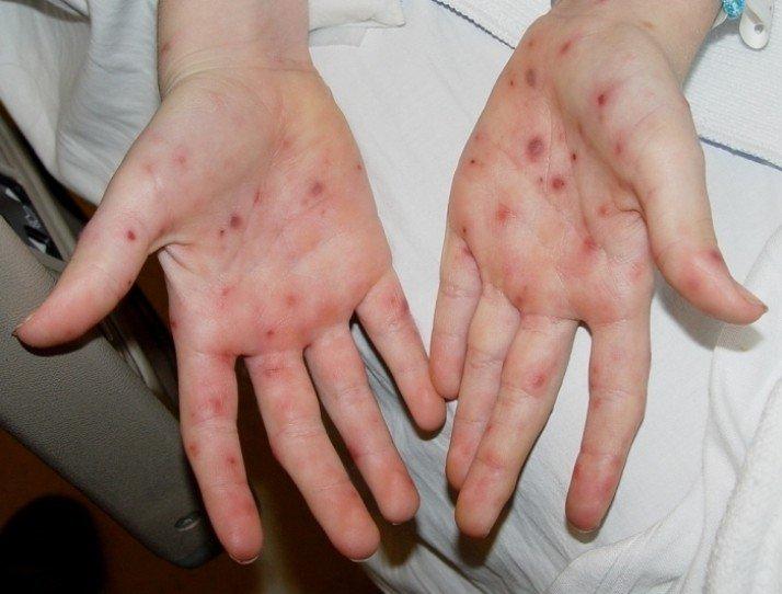 Самые частые причины и профилактика появления сыпи на руках и на лице