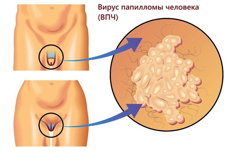 Вирус папилломы человека на половых органах