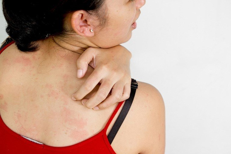Зуд кожи тела причины лечение народные средства