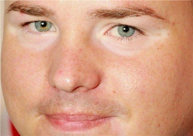 Белые круги под глазами