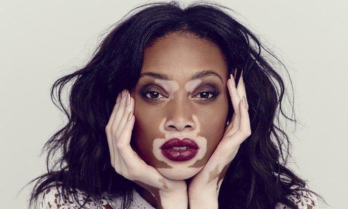 Витилиго на лице (канадская модель Шантель Браун-Янг)