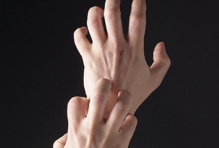 Покраснение на руках и зуд