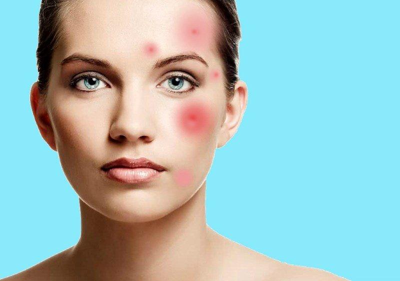 Воспаление на коже лица