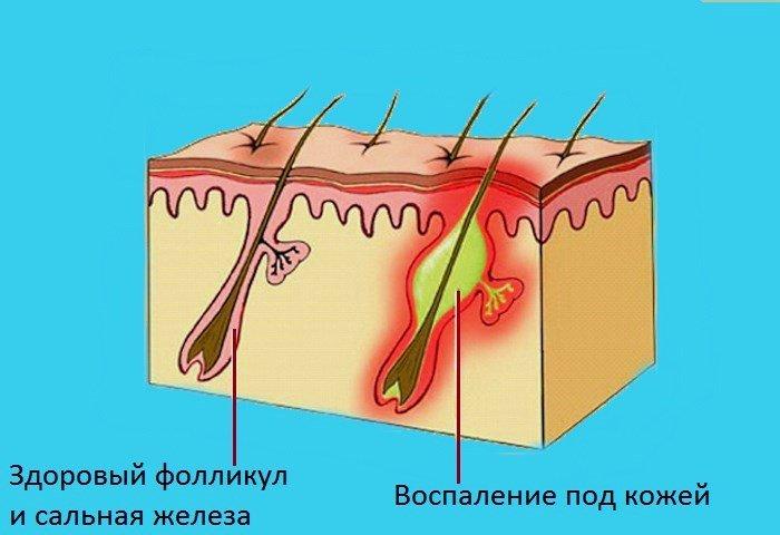 Воспаление сальной железы и фолликула под кожей