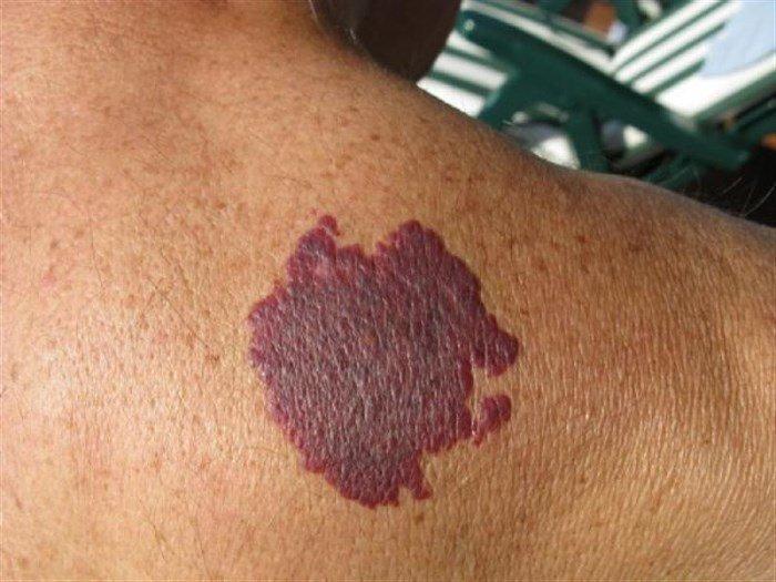 Фиолетовое пятно на коже
