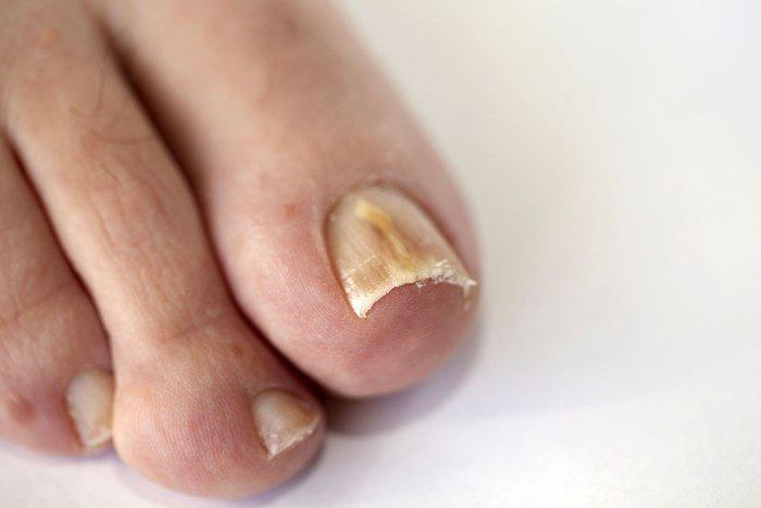 Поражение грибком ногтей на ногах