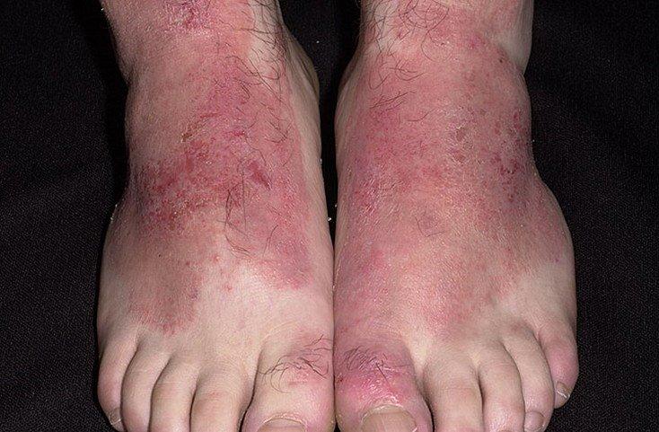 Пятна дерматита на коже