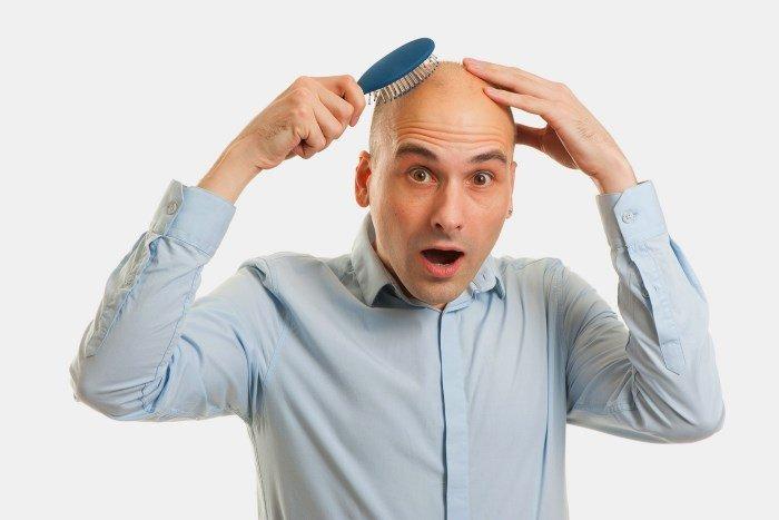 Отсутствие волос у мужчины на голове