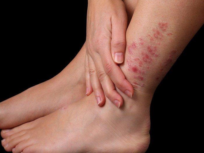 Покраснение кожи на ноге