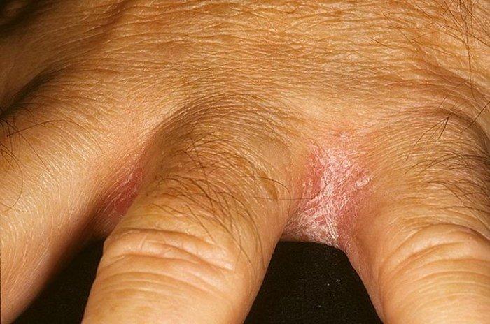 Шелушащиеся пятна между пальцами