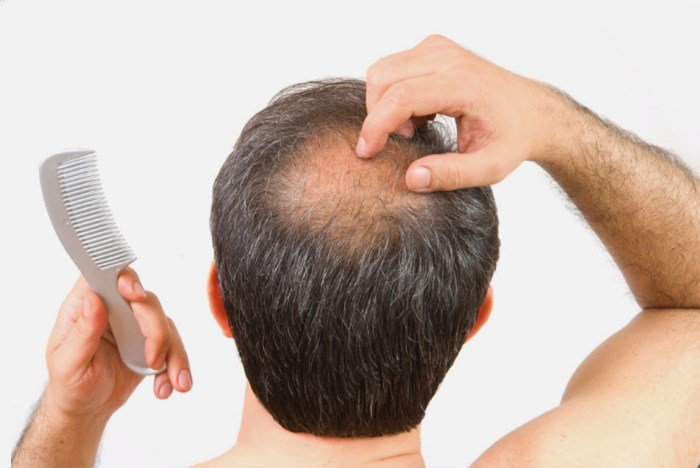 Рост волос на голове мужчины