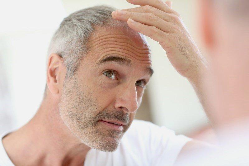 Рост волос на голове у мужчины