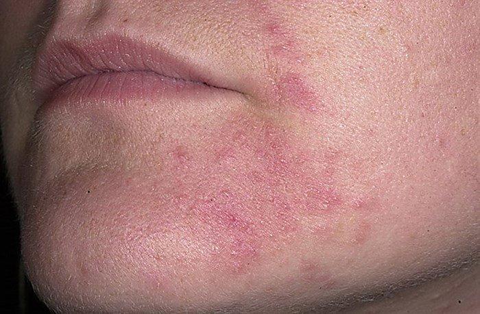 Шелушение и покраснение кожи вокруг губ