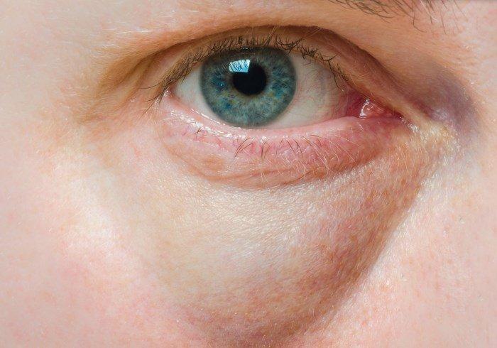 Болезненная припухлость под глазами