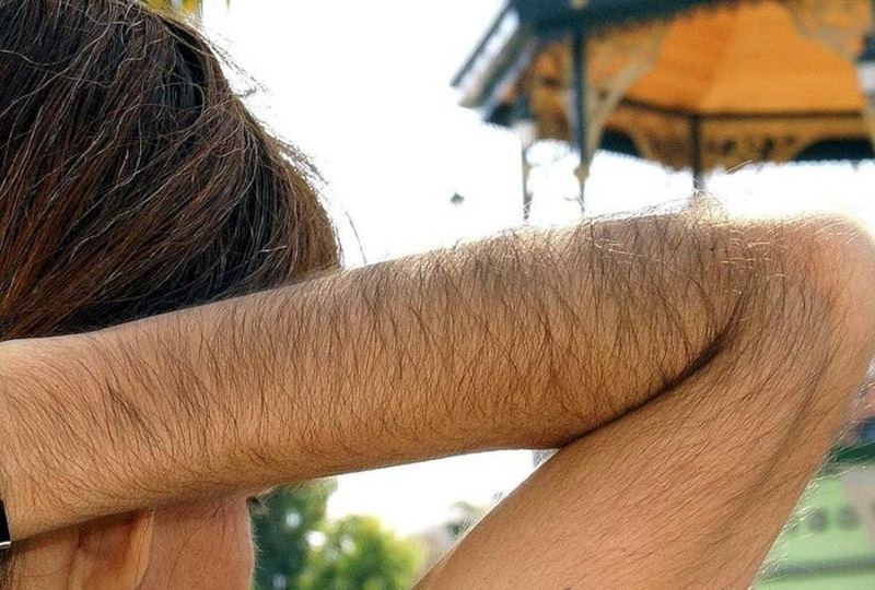 Рост волос на теле у женщины