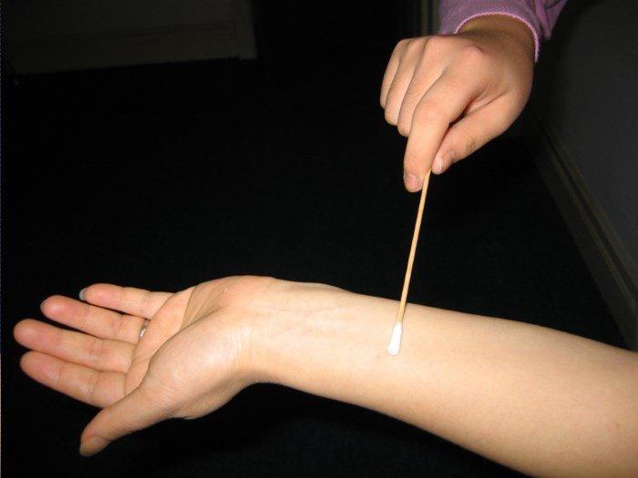 Тест на аллергию на коже