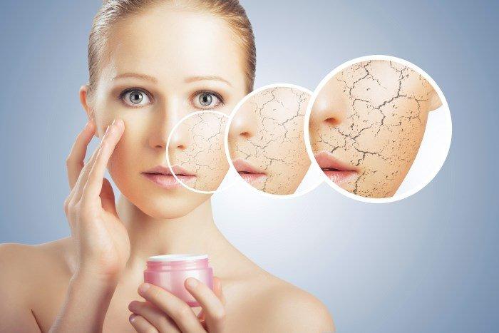 Сухость и шелушение кожи лица