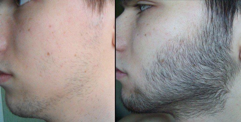 борода подростка до и после приема средства для роста волос