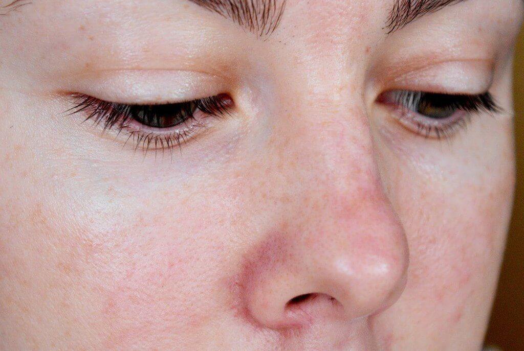 Лечение купероза микротоками