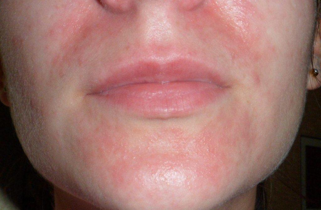 Дерматит на лице вызывает появление множества мелких прыщей
