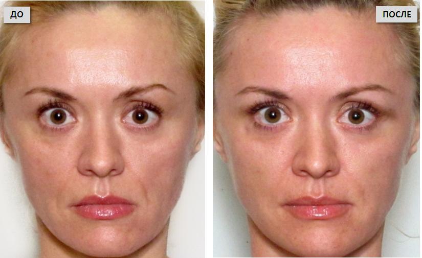 Отзывы о вибромассаже лица: фото до и после