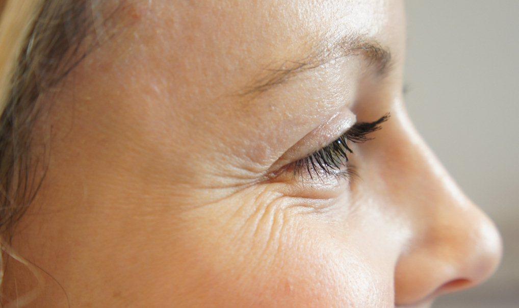 Мимические морщины во внешних углах глаз