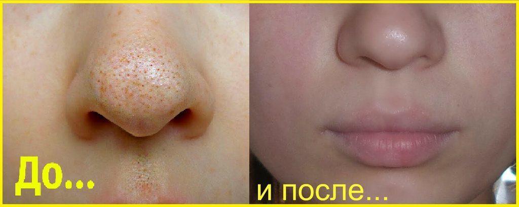 До и после желатиновой маски