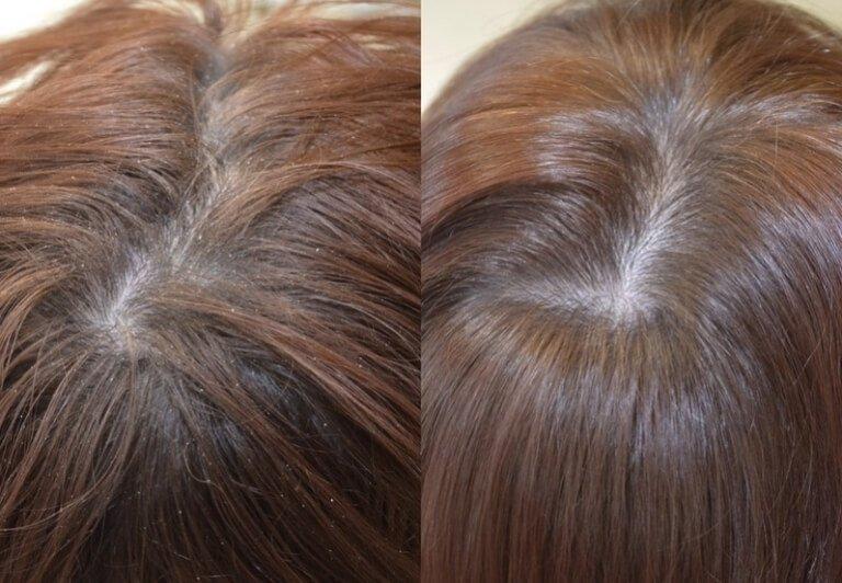 Результат лечения шампунем от перхоти