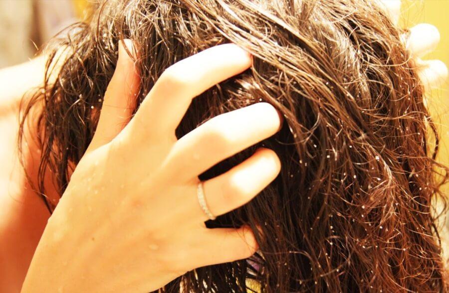 Рецепты скрабов от выпадения волос