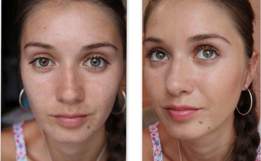 Результат пилинга кожи лица в домашних условиях