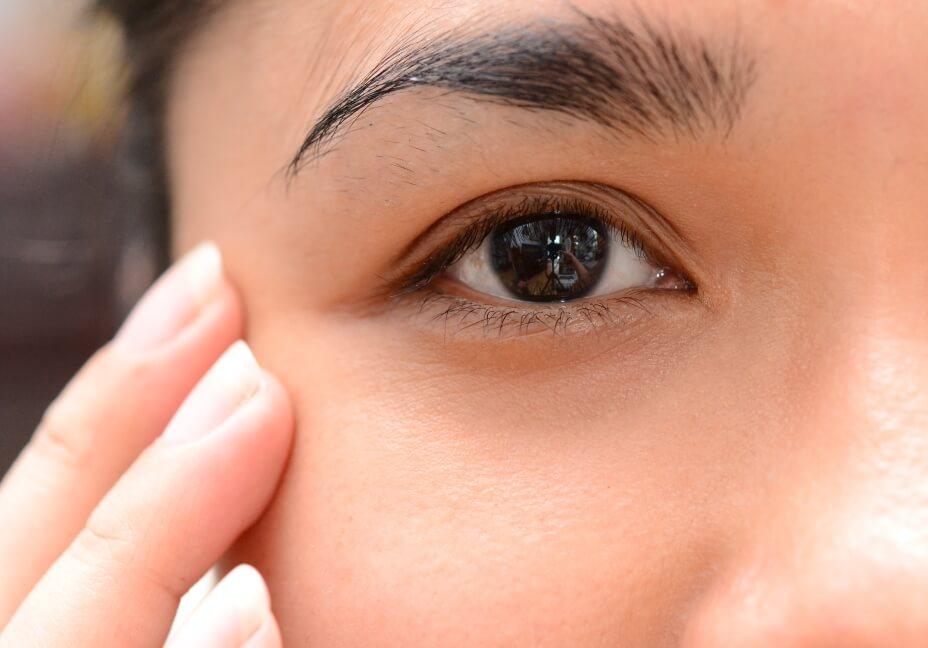 Краснеет кожа вокруг глаз