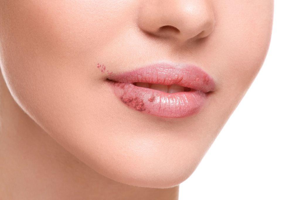 Заболевание слизистой губ