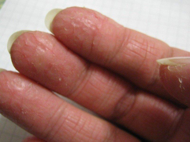 Сохнет и трескается кожа на руках