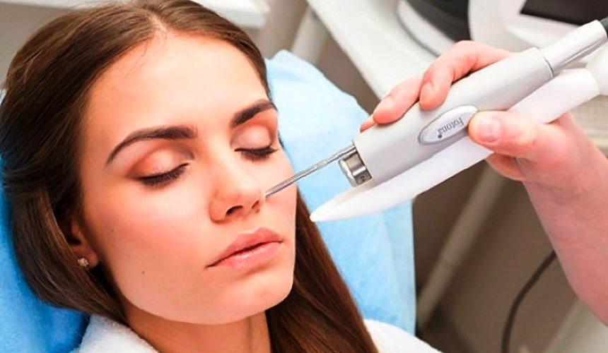 Лазерная очистка кожи лица от пигментных пятен