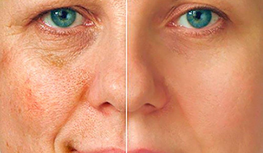 Как убрать пигментные пятна на коже лица