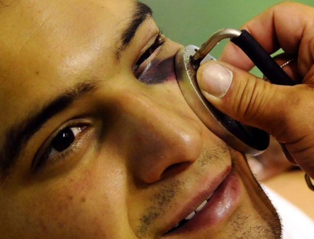Место ушиба и прорисовывающегося синяка смазать тонизирующим и кровоостанавливающим гелем