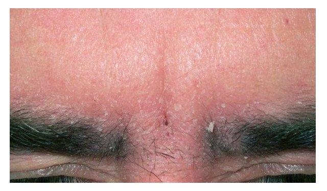 Как выглядит шелушение кожи на бровях?