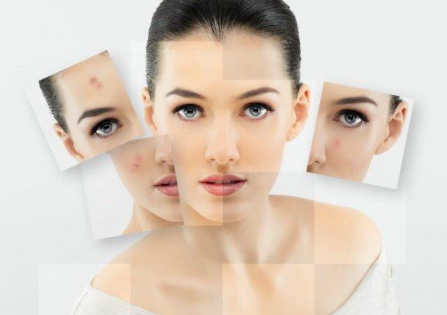 На жирной коже гораздо чаще появляются черные точки, угревая сыпь и неприятный блеск