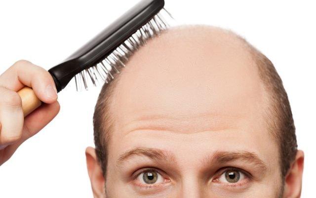 Нужно знать причины выпадения волос и вовремя предпринять все необходимые меры, чтобы сохранить шевелюру