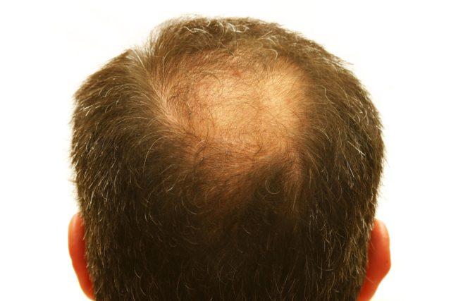 Многие из них относятся к физиотерапии, то есть лечению посредством физического воздействия на кожу головы