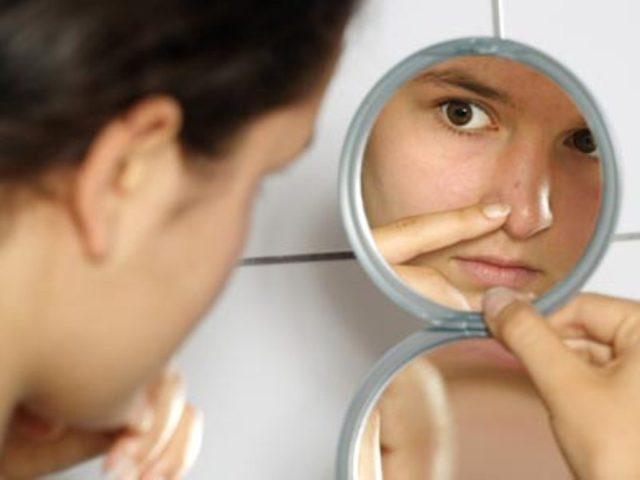 Чтобы убрать красные пятна от прыщей можно воспользоваться косметологическими, медикаментозными или народными средствами