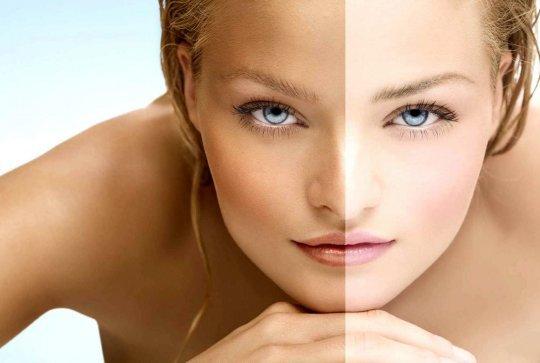 Появление этого косметического дефекта может стать причиной развития психологических комплексов