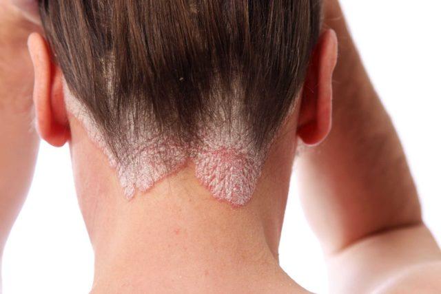 В результате этого заболевания волосы становятся слабыми и ломкими