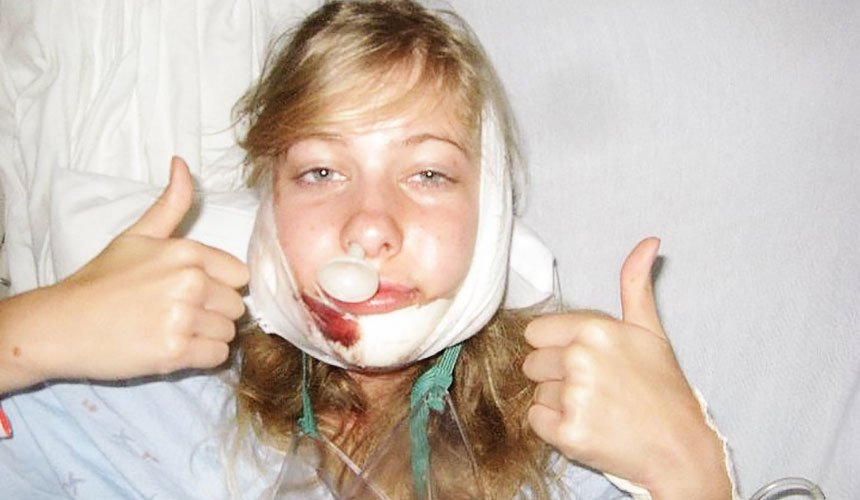 Отек лица после операции