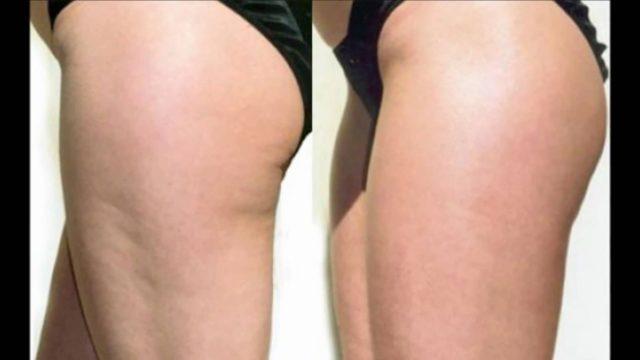 Нельзя добиться упругости и эластичности, привлекательности тела, если оно не получает всех необходимых витаминов