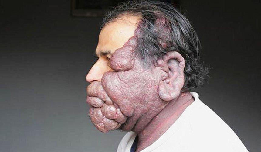 Переродившиеся винные пятна на лице