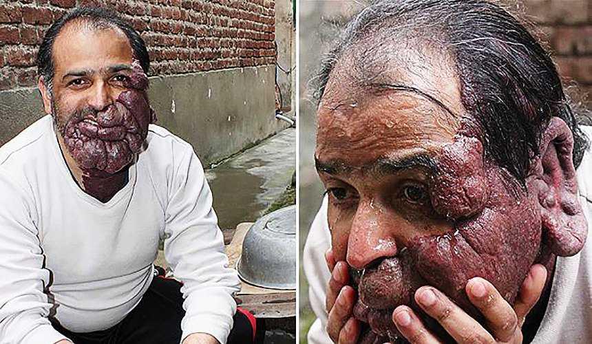 Удаление родимых пятен на лице